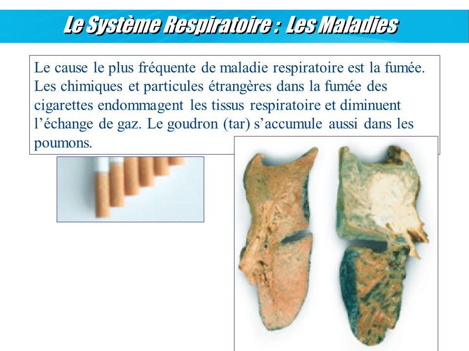 Le Système Respiratoire : Les Maladies Le cause le plus fréquente de maladie respiratoire est la fumée. Les chimiques et particules étrangères dans la