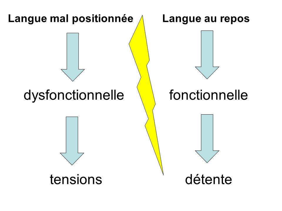 dysfonctionnelle tensions fonctionnelle détente Langue mal positionnéeLangue au repos