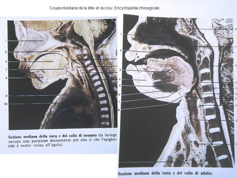 Coupe médiane de la tête et du cou; Encyclopédie chirurgicale.