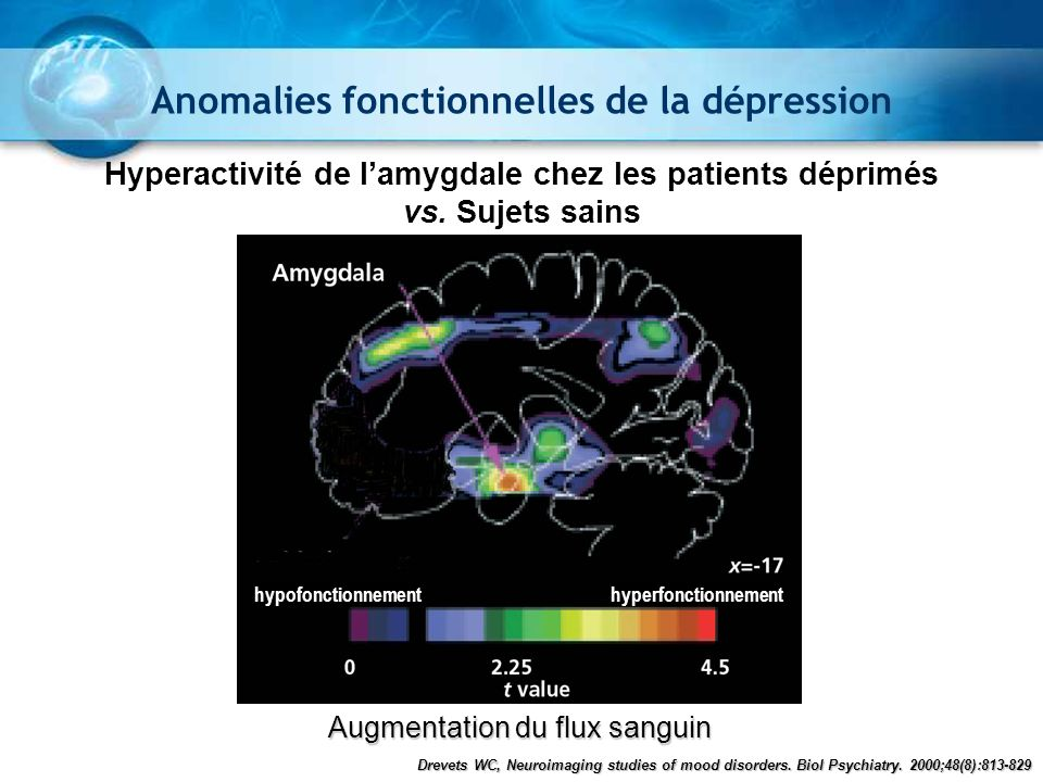 Augmentation du flux sanguin hypofonctionnementhyperfonctionnement Hyperactivité de lamygdale chez les patients déprimés vs. Sujets sains Drevets WC,