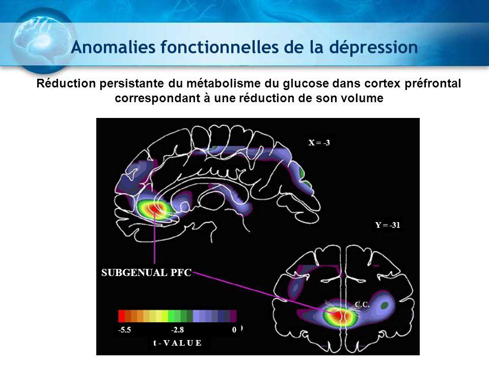X = -3 Y = -31 SUBGENUAL PFC t - V A L U E -5.5 -2.8 0 Réduction persistante du métabolisme du glucose dans cortex préfrontal correspondant à une rédu