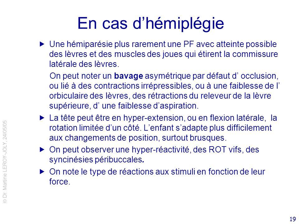 Dr. Martine LEROY-JOLY, 24/05/05 19 En cas dhémiplégie Une hémiparésie plus rarement une PF avec atteinte possible des lèvres et des muscles des joues