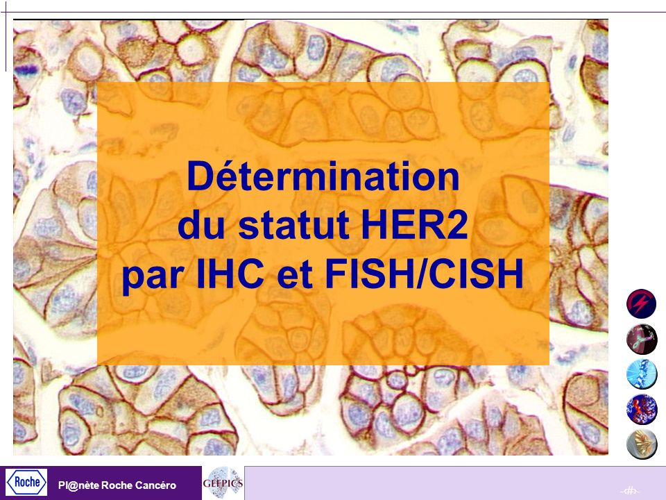 -33- Pl@nète Roche Cancéro -33- Pl@nète Roche Cancéro Herceptest ® (Dako) Anticorps primaire polyclonal ( A0485) Sur tissus fixés en FORMOL neutre tamponné Réactifs prêts à lemploi Témoins : lignées cellulaires, nombre déterminé de copies HER2/neu Système de lecture standardisée