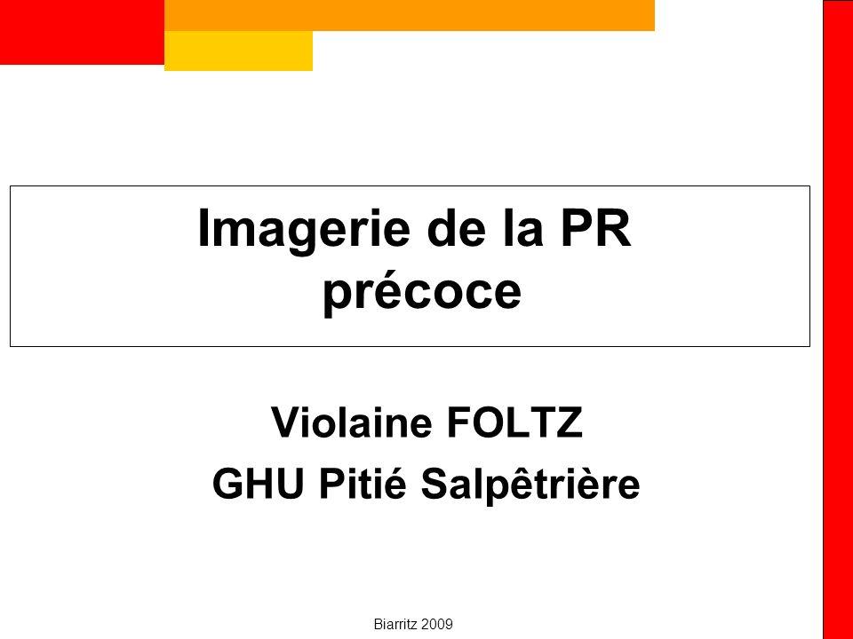 Biarritz 2009 IRM et pronostic Prédictif érosion –Synovites (OR: 2.14, p=0.003) –Œdème osseux ++++ (OR=6.47, p<0.001) x 6 le risque dérosion à 1an (McQueen ARD 99) prédictif aussi fonction –Score érosion initiale (VPP 93.3%, se 93.3%, Sp 81.8%) –Score global initial (synovites, tendinite, œdème, érosions) ( VPP 93%, se 80%, Sp 76% à 1 an) Prédictif de non évolution RX à 1 an –IRM de base normale
