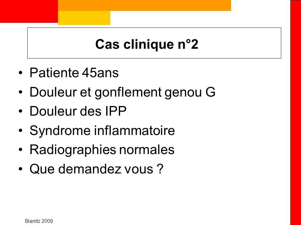 Biarritz 2009 Cas clinique n°2 Patiente 45ans Douleur et gonflement genou G Douleur des IPP Syndrome inflammatoire Radiographies normales Que demandez