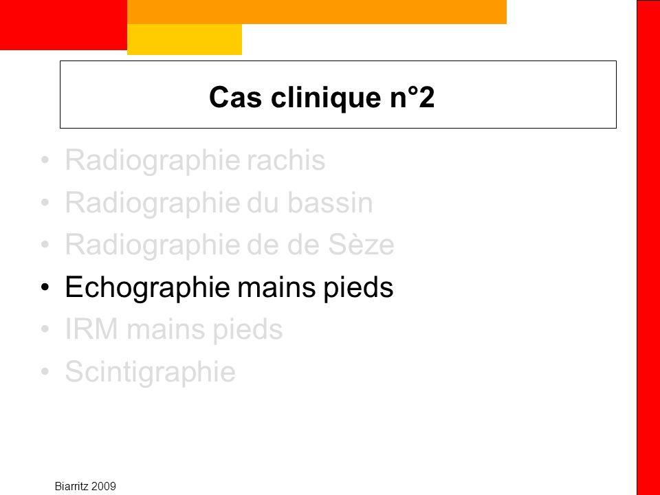 Biarritz 2009 Cas clinique n°2 Radiographie rachis Radiographie du bassin Radiographie de de Sèze Echographie mains pieds IRM mains pieds Scintigraphi