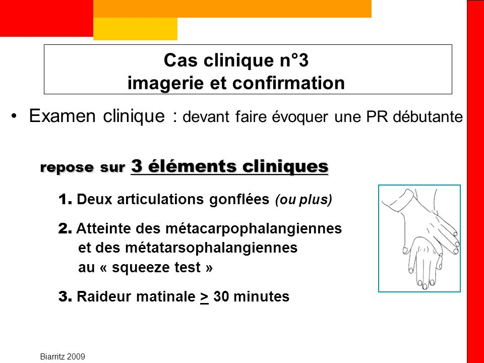 Biarritz 2009 Cas clinique n°3 imagerie et confirmation Examen clinique : devant faire évoquer une PR débutante repose sur 3 éléments cliniques 1. Deu
