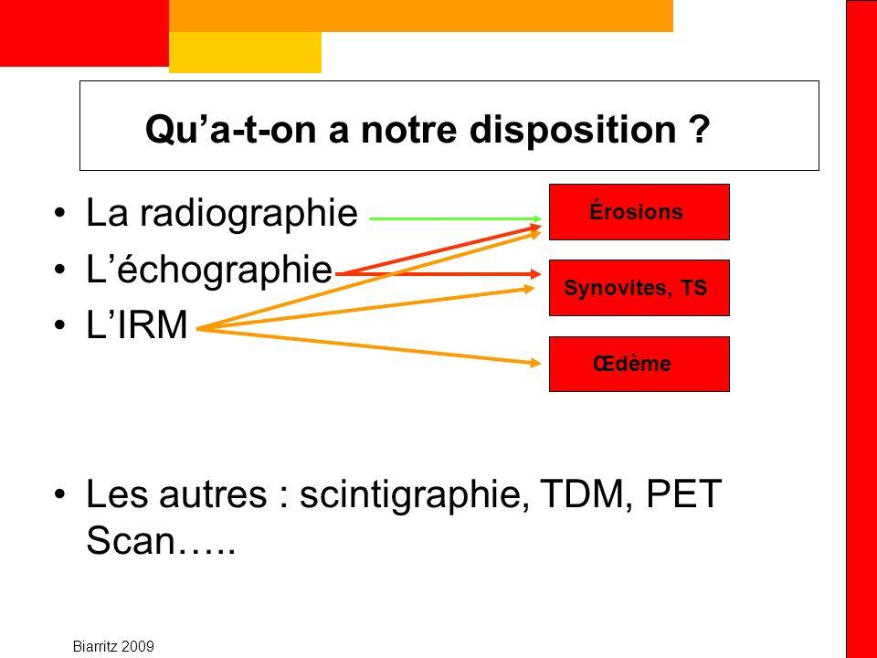 Biarritz 2009 Recommandation HAS Lorsque les radiographies standard apparaissent normales et si le doute diagnostique persiste (notamment du fait de lexistence darticulations symptomatiques), il est possible de rechercher des érosions éventuelles par des examens plus sensibles tels que léchographie (grade C) ou lIRM (grade C).
