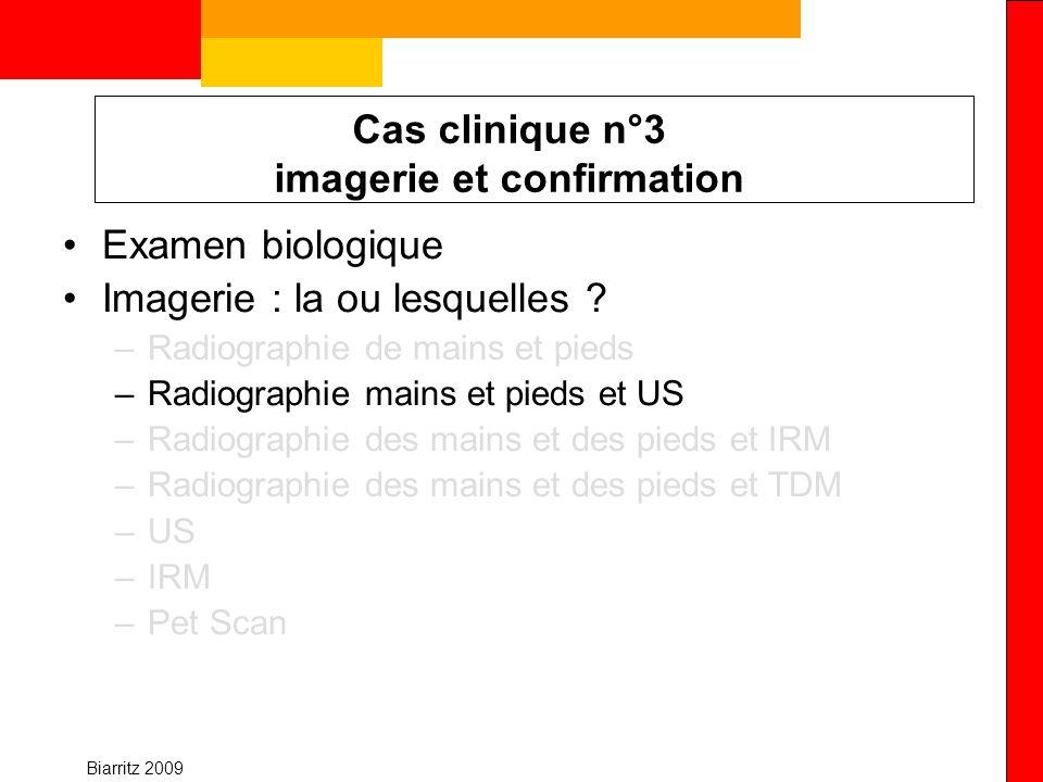 Biarritz 2009 Cas clinique n°3 imagerie et confirmation Examen biologique Imagerie : la ou lesquelles ? –Radiographie de mains et pieds –Radiographie
