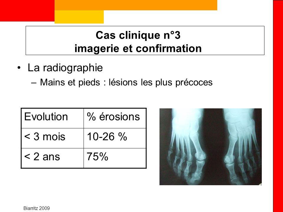 Biarritz 2009 Cas clinique n°3 imagerie et confirmation La radiographie –Mains et pieds : lésions les plus précoces Evolution% érosions < 3 mois10-26