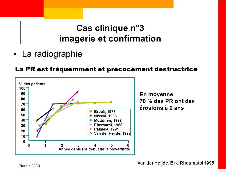 Biarritz 2009 Cas clinique n°3 imagerie et confirmation La radiographie Van der Heijde, Br J Rheumatol 1995 100 90 80 70 60 50 40 30 20 10 0 0123456 %