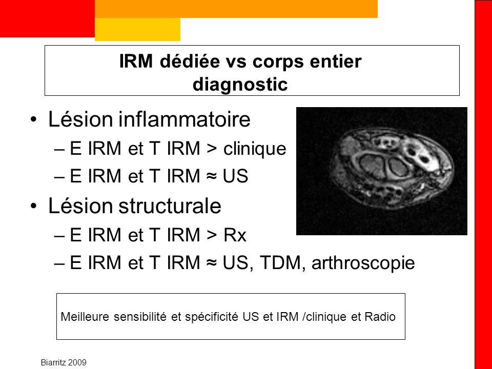 Biarritz 2009 IRM dédiée vs corps entier diagnostic Lésion inflammatoire –E IRM et T IRM > clinique –E IRM et T IRM US Lésion structurale –E IRM et T