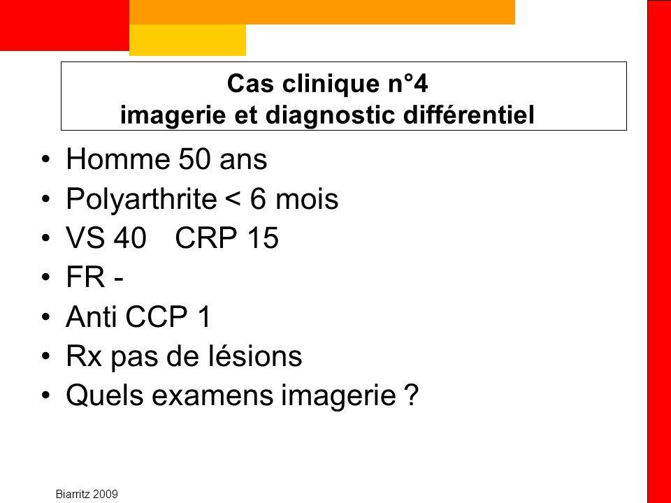Biarritz 2009 Cas clinique n°4 imagerie et diagnostic différentiel Homme 50 ans Polyarthrite < 6 mois VS 40 CRP 15 FR - Anti CCP 1 Rx pas de lésions Q