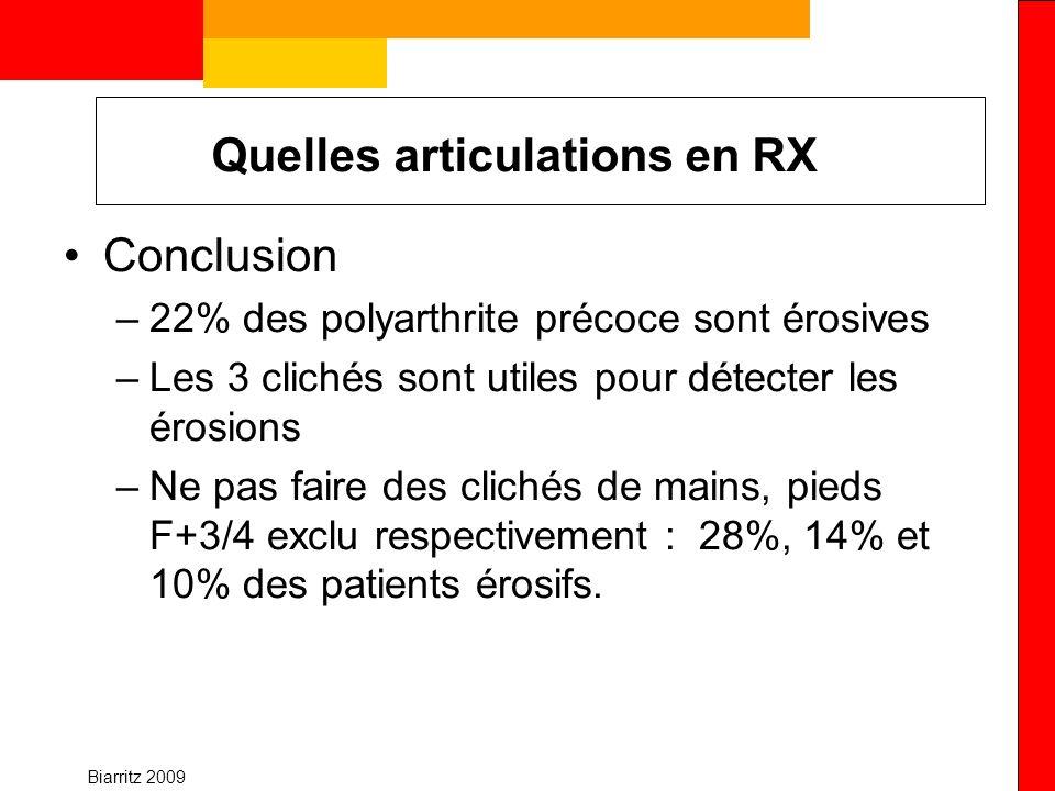 Biarritz 2009 Quelles articulations en RX Conclusion –22% des polyarthrite précoce sont érosives –Les 3 clichés sont utiles pour détecter les érosions