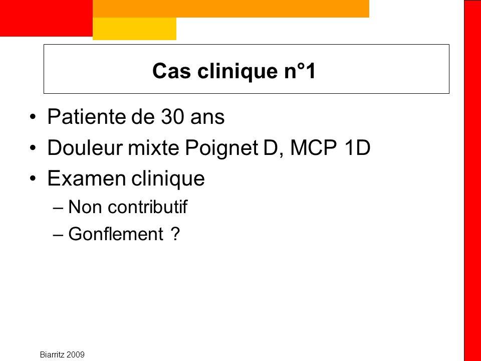 Biarritz 2009 Cas clinique n°1 Patiente de 30 ans Douleur mixte Poignet D, MCP 1D Examen clinique –Non contributif –Gonflement ?
