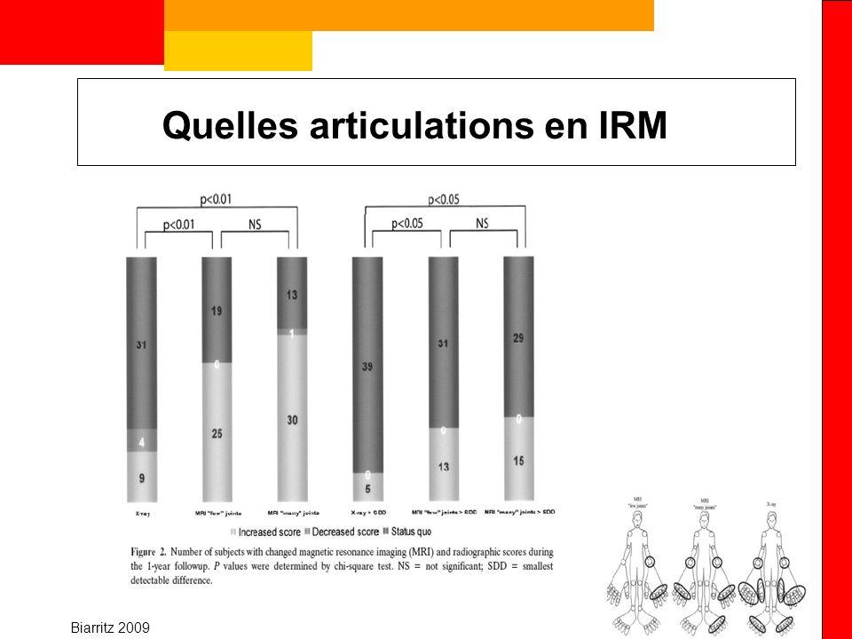 Biarritz 2009 Quelles articulations en IRM