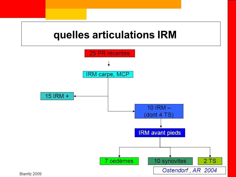 Biarritz 2009 quelles articulations IRM 25 PR récentes 15 IRM + 10 IRM – (dont 4 TS) IRM carpe, MCP IRM avant pieds 7 oedèmes10 synovites2 TS Ostendor