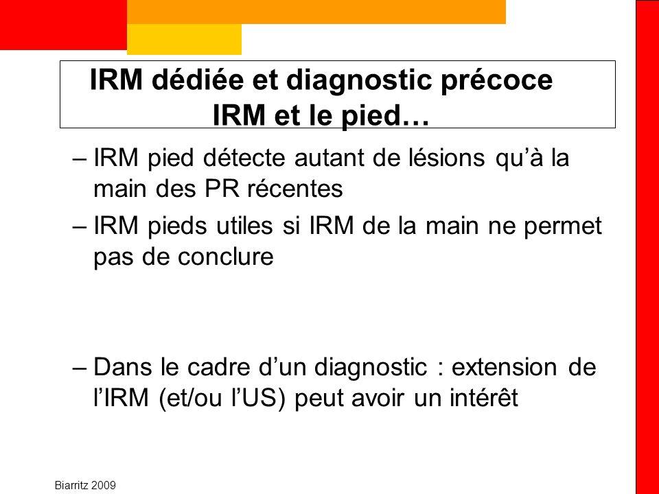 Biarritz 2009 IRM dédiée et diagnostic précoce IRM et le pied… –IRM pied détecte autant de lésions quà la main des PR récentes –IRM pieds utiles si IR
