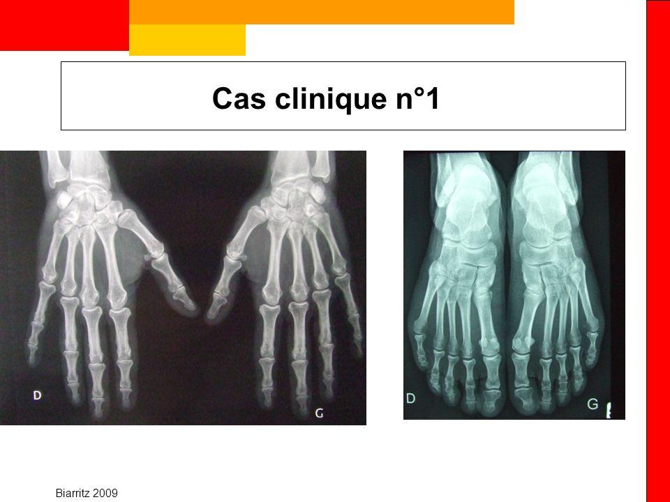 Biarritz 2009 Cas clinique n°3 imagerie et confirmation La radiographie : Inconvénients sensibilité moins bonne que lUS et lIRM Lindegaard H, ARD 2001 25 PR <12 mois, non traitées Erosion IRM/Rx : 9.5/1 (10-15%) Synovites cliniques (n=125 articulations) -+ Hypertrophie synoviale IRM (n= 125 articulations) Grade 0-1415 Grade 2-44336