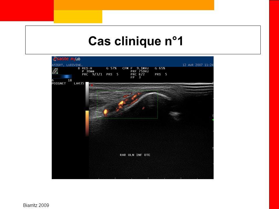 Biarritz 2009 Cas clinique n°1 Imagerie –Elimine « simple » arthralgie –Permet de confirmer la présence dune synovite –Bilan et traitement Synovite