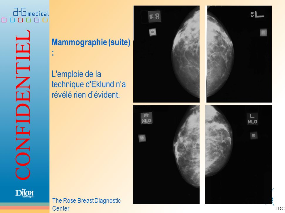 CONFIDENTIEL Mammographie (suite) : L'emploie de la technique d'Eklund na révélé rien dévident. The Rose Breast Diagnostic Center IDC
