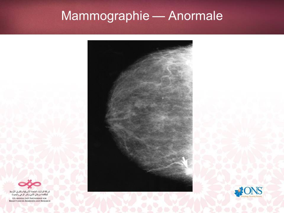 Mammographie Anormale