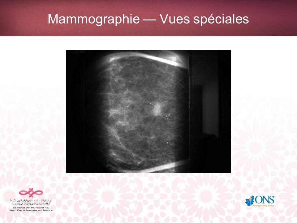 Mammographie Vues spéciales