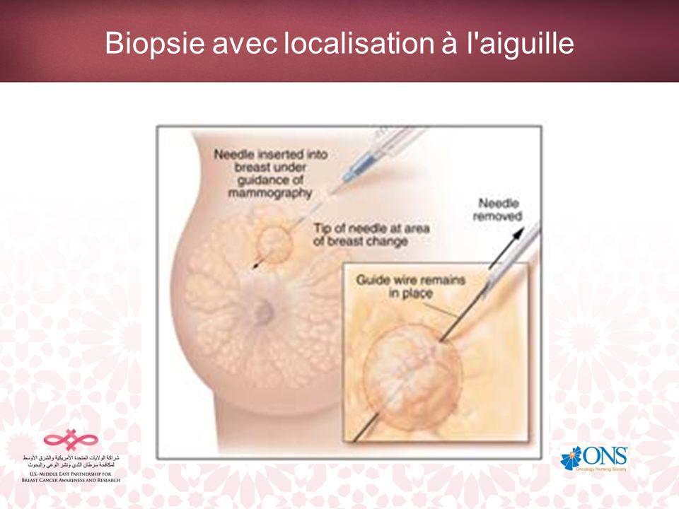 Biopsie avec localisation à l'aiguille