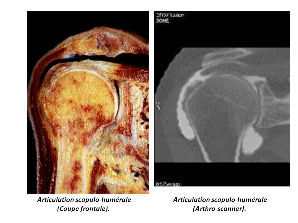 Articulation scapulo-humérale (Coupe frontale). Articulation scapulo-humérale (Arthro-scanner).