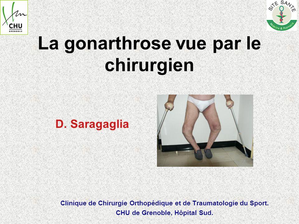 La gonarthrose vue par le chirurgien D. Saragaglia Clinique de Chirurgie Orthopédique et de Traumatologie du Sport. CHU de Grenoble, Hôpital Sud.