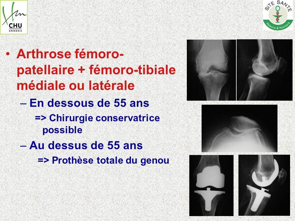Arthrose fémoro- patellaire + fémoro-tibiale médiale ou latérale –En dessous de 55 ans => Chirurgie conservatrice possible –Au dessus de 55 ans => Pro