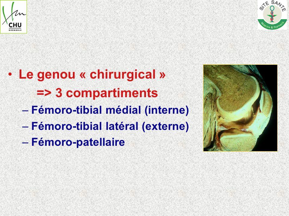 Arthrose = lésion du cartilage conduisant à –Pincement de linterligne +++ –Ostéophytose –Sclérose sous chondrale