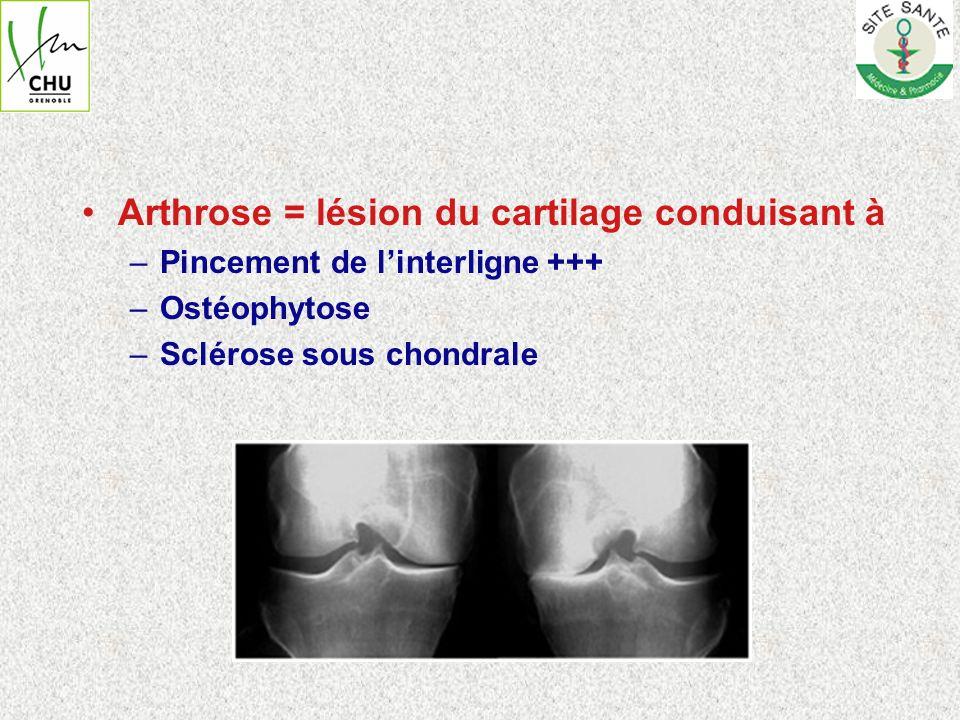 Arthrose fémoro- patellaire + fémoro-tibiale médiale ou latérale –En dessous de 55 ans => Chirurgie conservatrice possible –Au dessus de 55 ans => Prothèse totale du genou