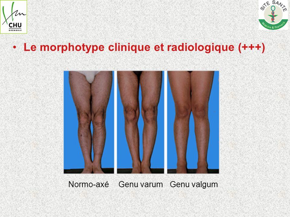 Le morphotype clinique et radiologique (+++) Normo-axéGenu varumGenu valgum