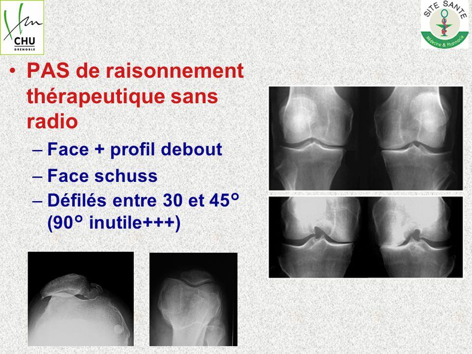 PAS de raisonnement thérapeutique sans radio –Face + profil debout –Face schuss –Défilés entre 30 et 45° (90° inutile+++)