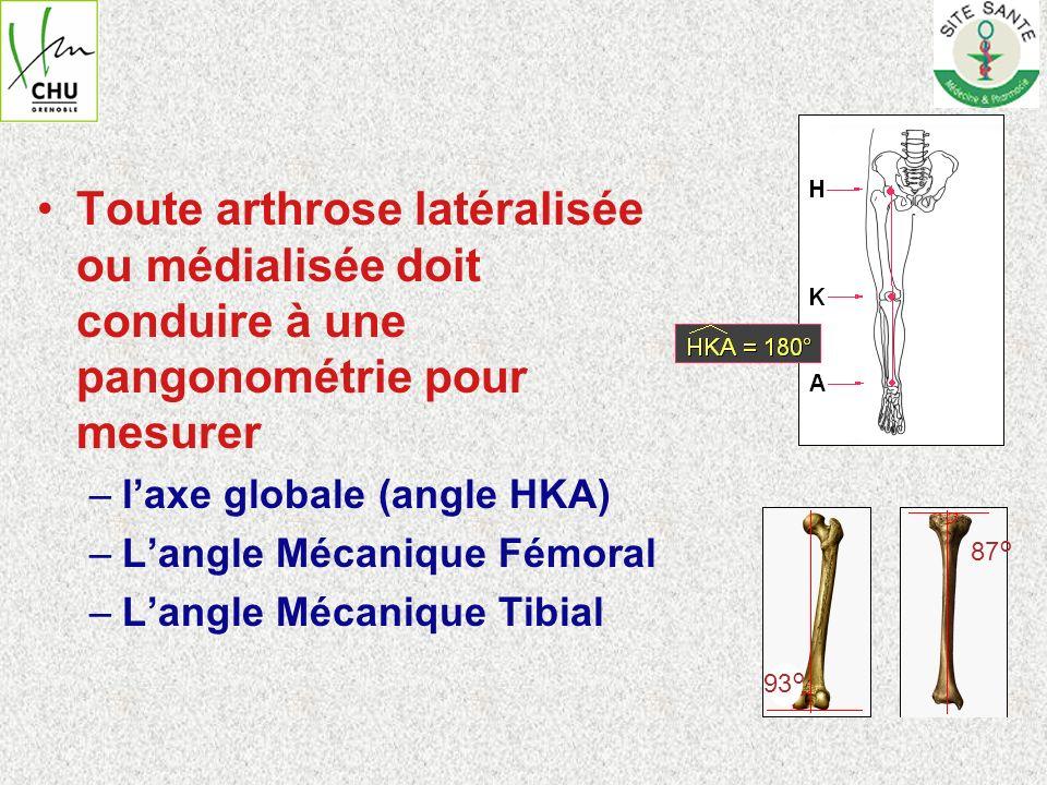 Toute arthrose latéralisée ou médialisée doit conduire à une pangonométrie pour mesurer –laxe globale (angle HKA) –Langle Mécanique Fémoral –Langle Mé