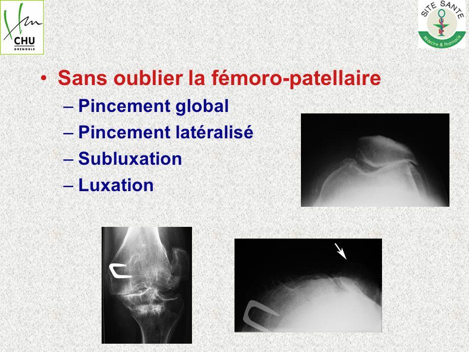 Cas particuliers –Genu varum ou valgum douloureux sans pincement articulaire (ou pincement modéré) Compléter limagerie PAS dIRM (conduit à lerrance diagnostique et thérapeutique) Arthro-scanner (ou arthro-IRM?) pour Bilan méniscal et cartilagineux +++ –Constatation fortuite de lésions cartilagineuses fémoro-tibiales au cours dune arthroscopie => Gonométrie pour vérifier les axes