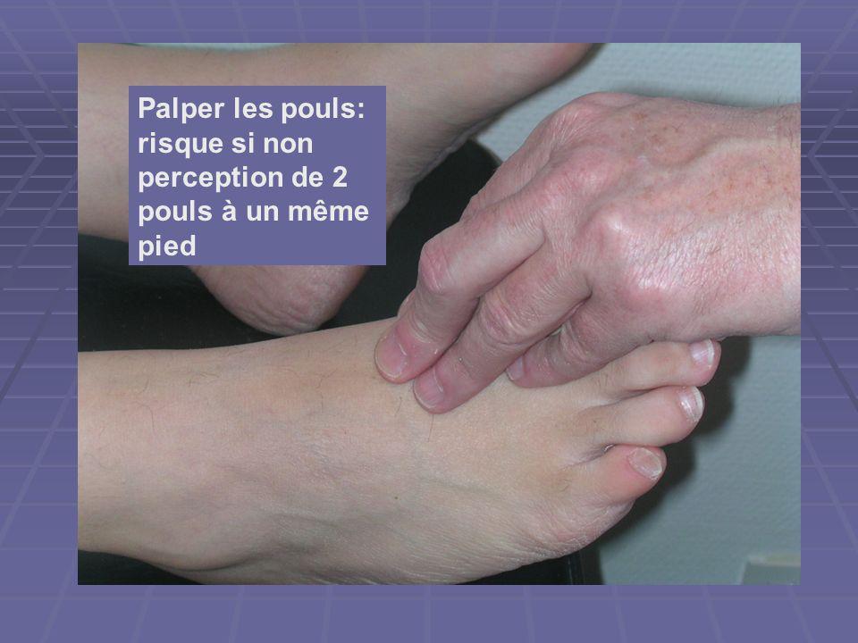 Palper les pouls: risque si non perception de 2 pouls à un même pied