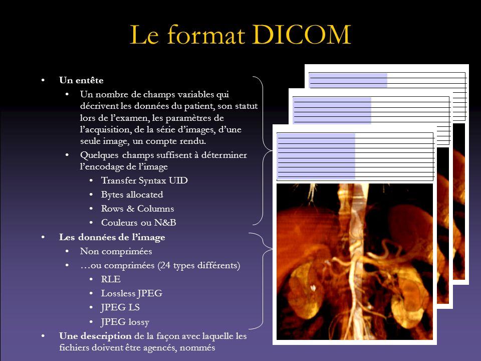 Le format DICOM Un entête Un nombre de champs variables qui décrivent les données du patient, son statut lors de lexamen, les paramètres de lacquisiti