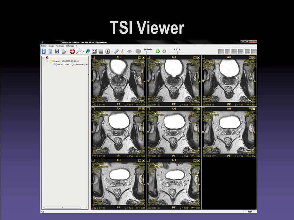 TSI Viewer