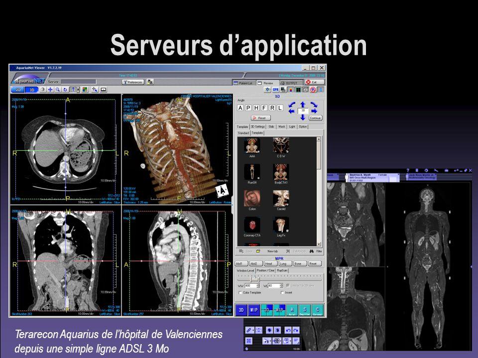 Serveurs dapplication Terarecon Aquarius de lhôpital de Valenciennes depuis une simple ligne ADSL 3 Mo