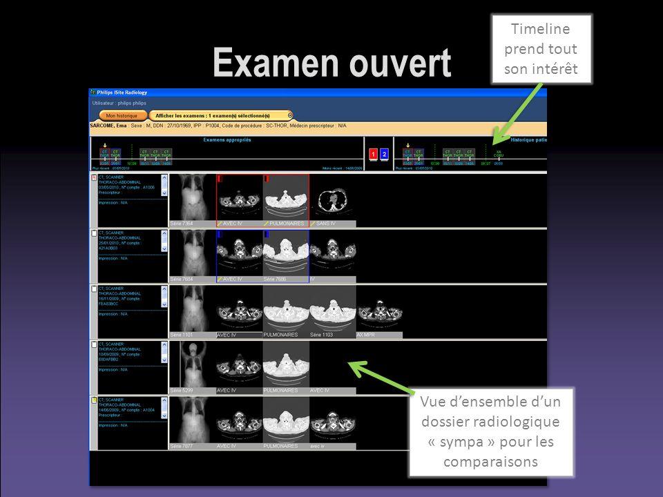Examen ouvert Vue densemble dun dossier radiologique « sympa » pour les comparaisons Timeline prend tout son intérêt