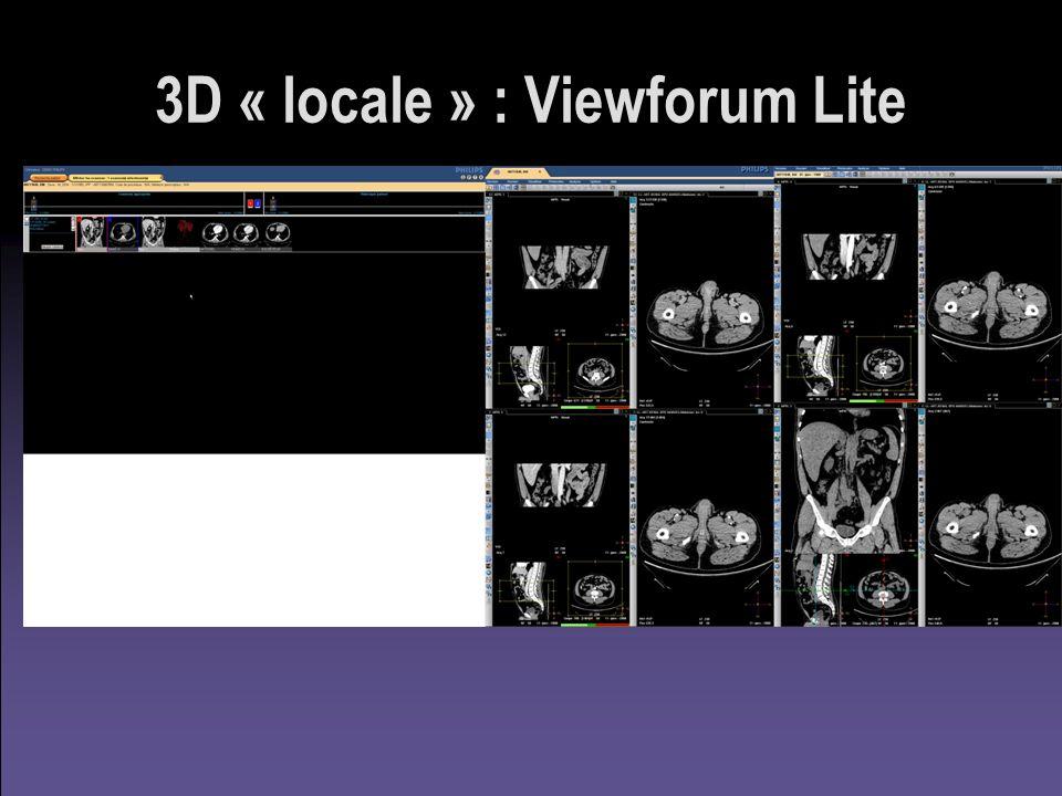 3D « locale » : Viewforum Lite