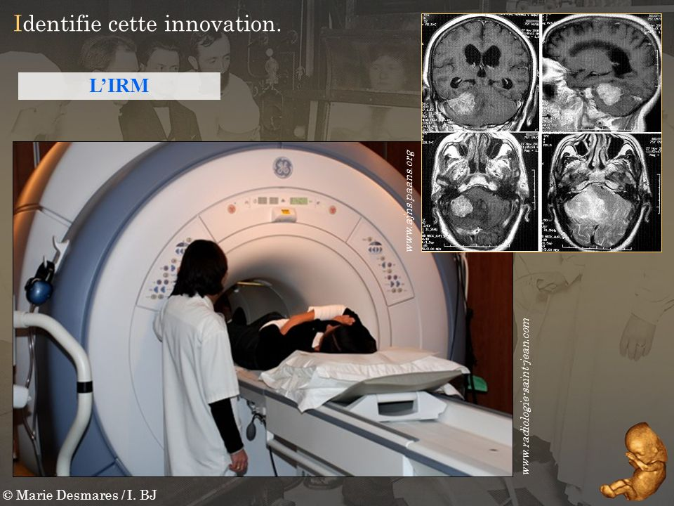 © Marie Desmares / I. BJ Identifie cette innovation. www.radiologie-saint-jean.com LIRM www.ajns.paans.org