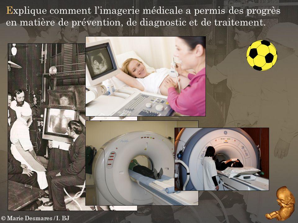 © Marie Desmares / I. BJ Explique comment limagerie médicale a permis des progrès en matière de prévention, de diagnostic et de traitement.