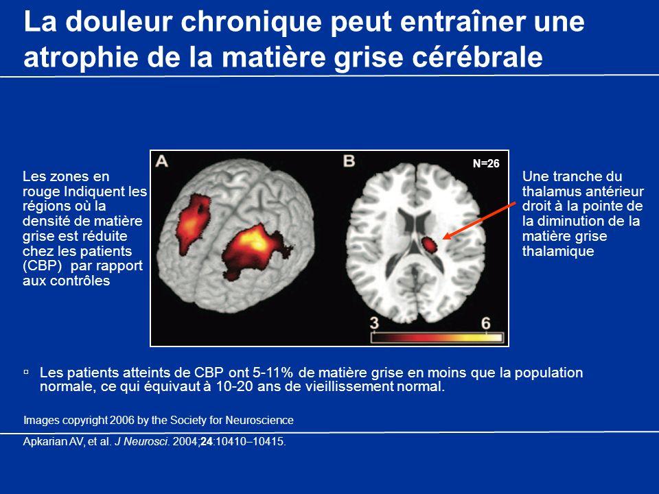 La douleur chronique peut entraîner une atrophie de la matière grise cérébrale Les patients atteints de CBP ont 5-11% de matière grise en moins que la