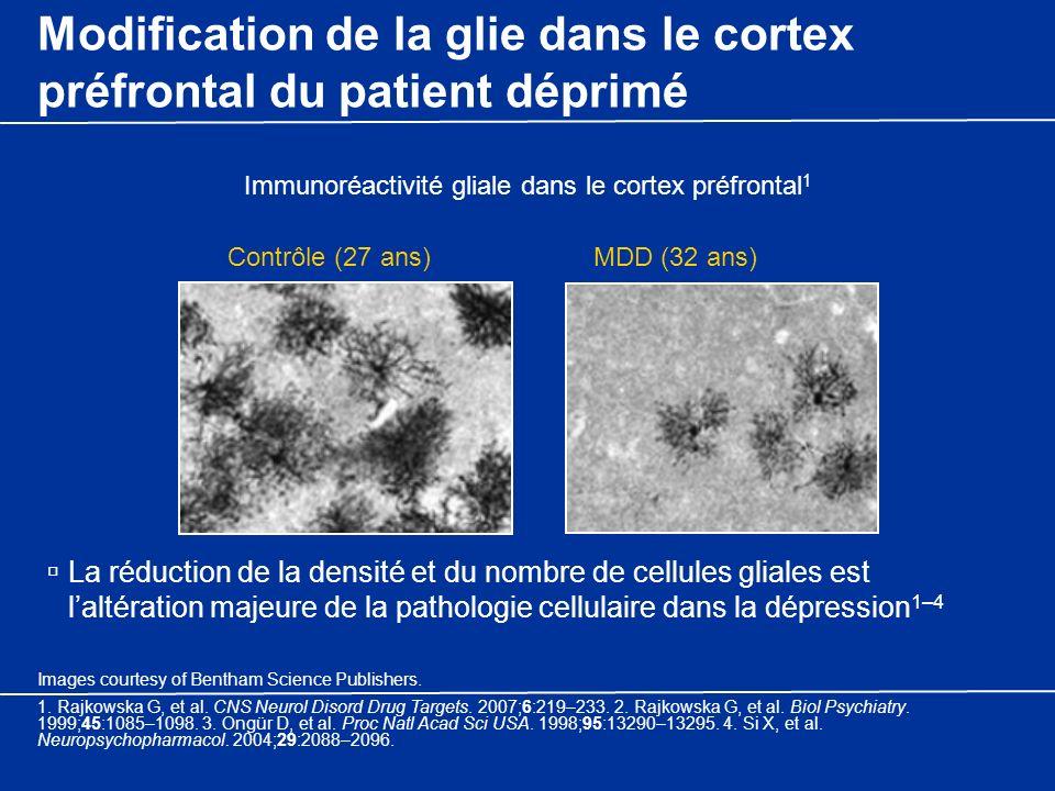 Modification de la glie dans le cortex préfrontal du patient déprimé La réduction de la densité et du nombre de cellules gliales est laltération majeu