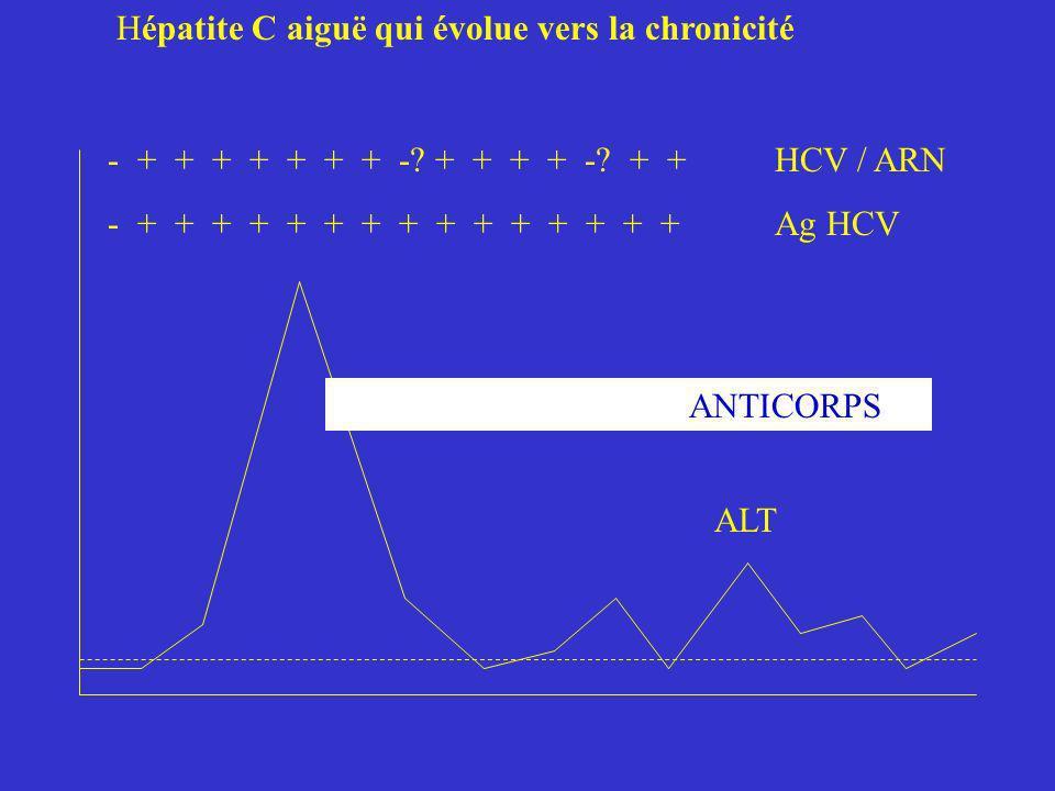 Hépatite C aiguë qui évolue vers la chronicité - + + + + + + + -? + + + + -? + + HCV / ARN - + + + + + + + + + + + + + + + Ag HCV ALT ANTICORPS