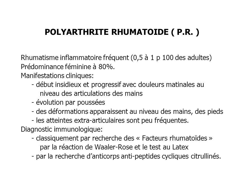 POLYARTHRITE RHUMATOIDE ( P.R. ) Rhumatisme inflammatoire fréquent (0,5 à 1 p 100 des adultes) Prédominance féminine à 80%. Manifestations cliniques: