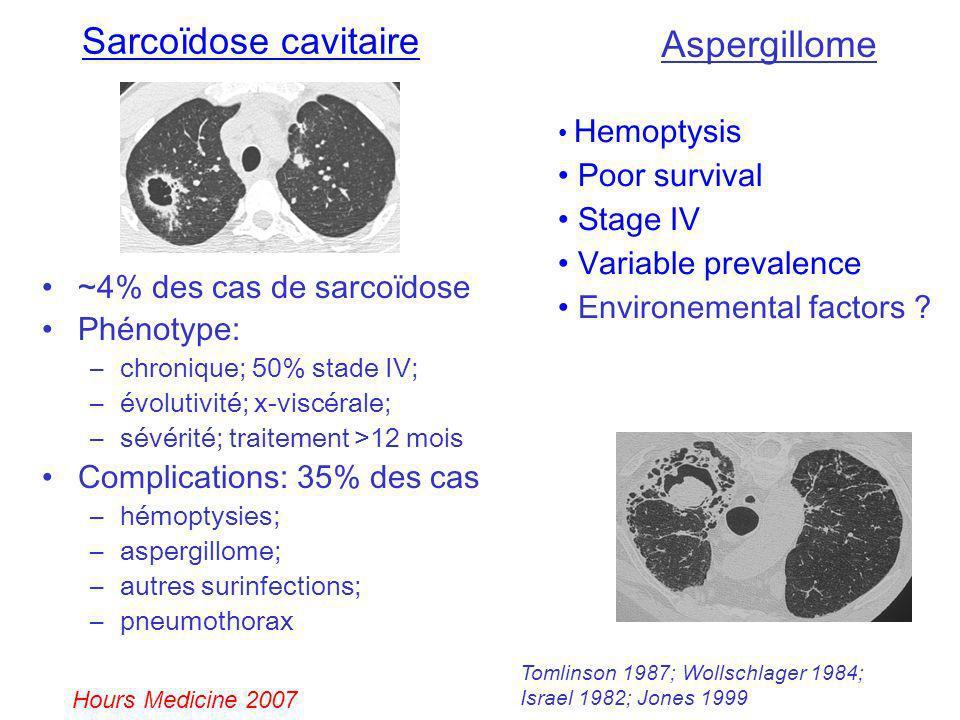 Sarcoïdose cavitaire ~4% des cas de sarcoïdose Phénotype: –chronique; 50% stade IV; –évolutivité; x-viscérale; –sévérité; traitement >12 mois Complica